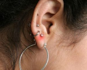 Гноится ухо от сережки