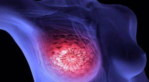 Фиброзно кистозная мастопатия и контрацепция
