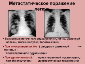 Не могут найти первоисточник опухоли
