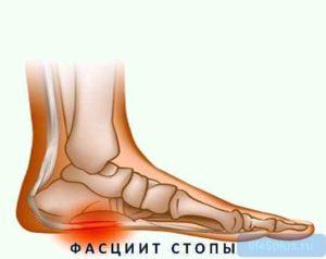 Не работает пятка правой ноги