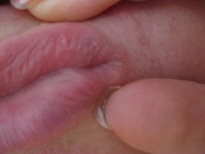 Небольшое уплотнение на большой половой губе с внешней стороны