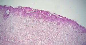 Гиперкератоз плоского эпителия вульвы