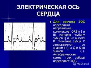 Неопределенная фронтальная ось QRS на экг