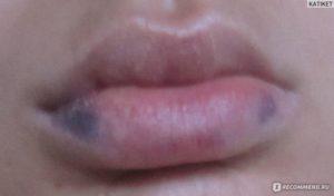 Голова болит, синеют губы