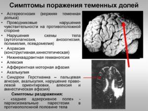 О чем говорят негрубые фокальные нарушения слева в теменно-центрально-височной доле?