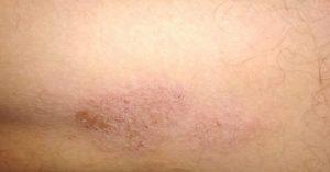 Непонятная сухая болячка на коже ноги