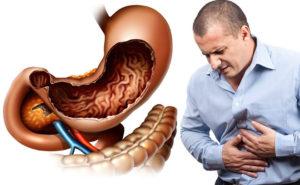 Очень болит желудок от Гептора