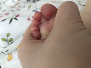 Фиолетовые пятна на подушечках пальцев ног