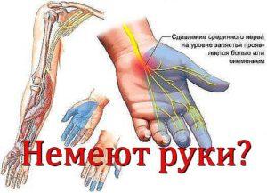 Немеют руки от плеча до пальцев