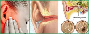 Гноетечение из уха
