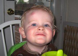 Гематома на голове у ребенка