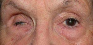 Атрофия мышц глаза
