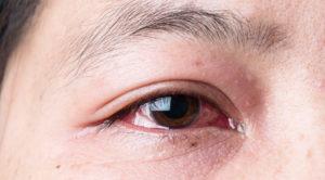 Один глаз красный, болит, слезится