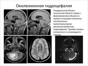 Незначительная наружная гидроцефалия