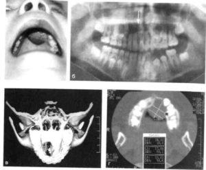 NEO нижней челюсти - это рак?
