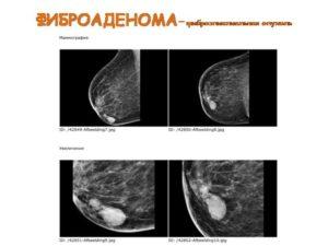 Фиброаденома или рак