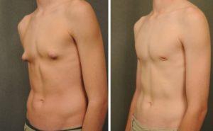 Не развивается грудь