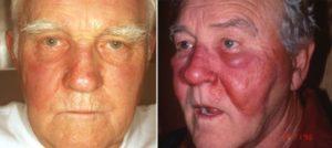 Ослюнение кожных покровов