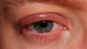 Опух глаз от ячменя
