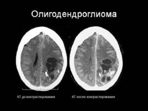 Олигодендроглиома