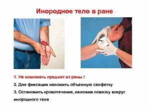 Осложнения после извлечения инородного тела