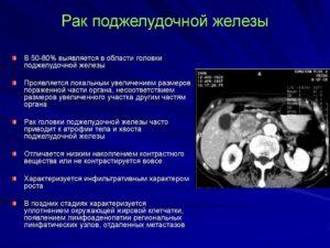 Объемное образование поджелудочной железы