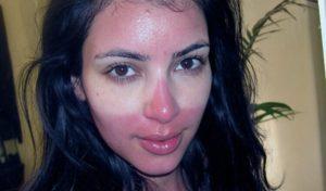 Ожог на лице после солярия