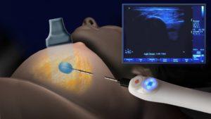 Нужна ли биопсия кисты в молочной железе?