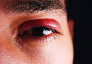 Опухло нижнее веко после попадания дыма в глаз