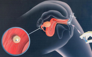 Незащищённый секс с попаданием спермы при начале приема Джес