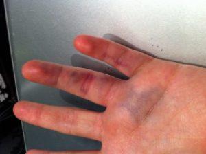 Опухла кисть руки после глубокого пореза
