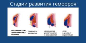 Геморройные узлы и кровь