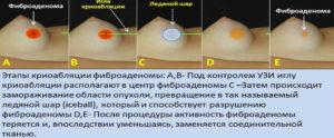 Фиброаденомы молочных желез, операция