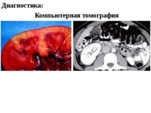 Остаточные явления пиелонефрита