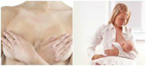 Горячая грудь и температура при мастите