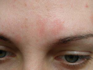 Непонятное пятно на лице