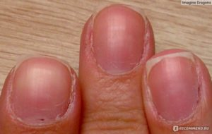 Не отрастает кутикула на ногте у ребенка