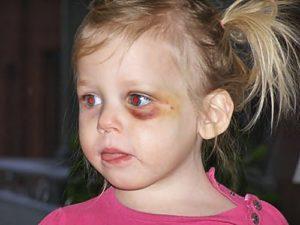 Гематома под глазом после падения у ребенка!