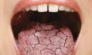 Головокружение и сухость во рту