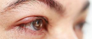 Глаз красный, чешется, гноится