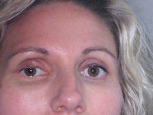 Отек под глазом после удара лечение