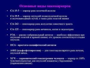 Онкомаркер молочной железы СА 15.3