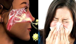 Ощущение остановки дыхания, слабость, спазм в носу