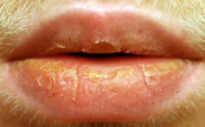 Грубые корочки на нижней губе