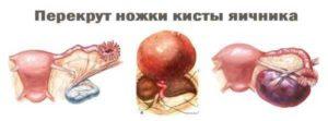 Гомеопатия при кисте Яичника