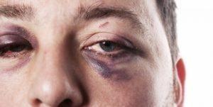 Непреходящая боль в правом глазу после драки