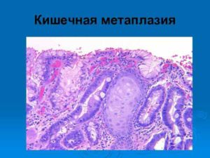 Очаговая неполная кишечная метаплазия эпителия желез