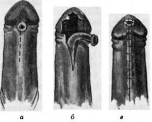 Форма полового члена