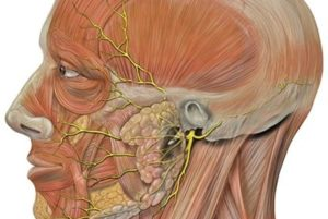 Невропатия тройничного нерва