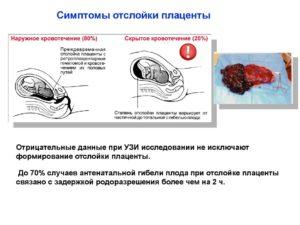 Отслойка плаценты смерть ребенка в 38 недель